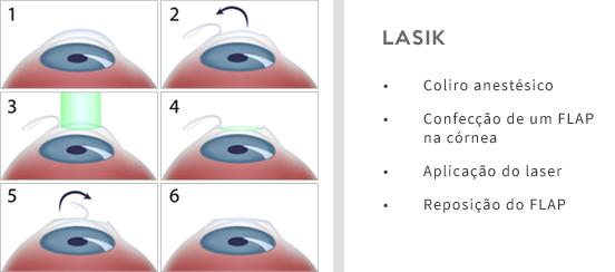03722e134 Cirurgia Refrativa - IOU - Instituto de Olhos Uberaba